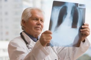 chilean-doctor-looking-at-x-ray-gettyimages